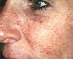 Altersflecken im Gesicht