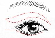 Korrektur der Augenlider, Augenlidkorrektur