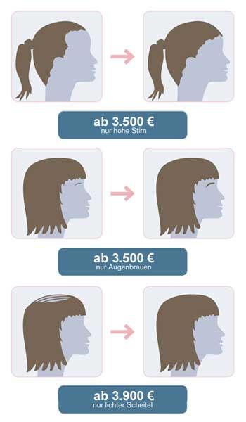 Preis-Beispiel bei Frauen