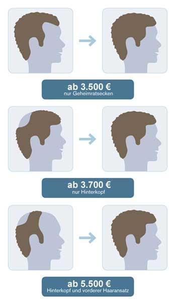 Preis-Beispiel bei Männern