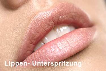 Lippen-Unterspritzung Hamburg, Kiel