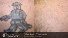 Tattoo-Entfernung - Vor der Behandlung / 5 Sitzungen PicoSure-Laser