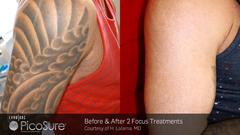Tattoo-Entfernung - Vor der Behandlung / 2 Sitzungen PicoSure-Laser