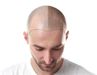 Vorher-Nachher - Kopfhaut Pigmentierung - Scalp Micro Pigmentation