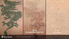 Tattoo-Entfernung - Vor der Behandlung / 20 Sitzungen Nd:Yag Laser / 3 Sitzungen PicoSure-Laser