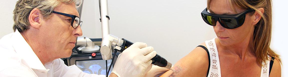 Moderne Tattoo-Entfernung - PICO-Laser Tätowierungsentfernung