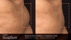 SculpSure Fettentfernung - Vor der Behandlung / nach 12 Wochen - 1 Behandlung